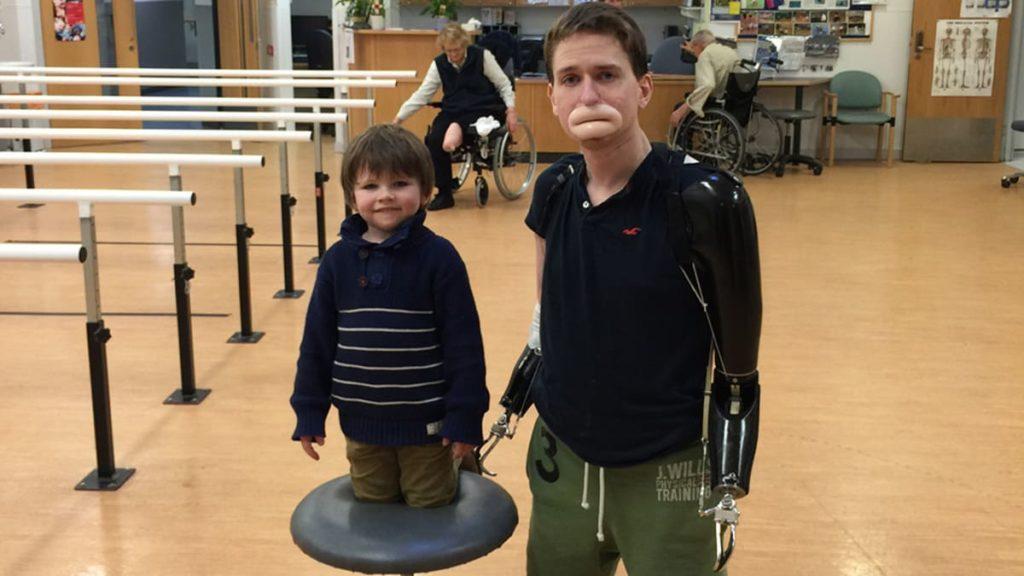 Alex Lewis con le protesi