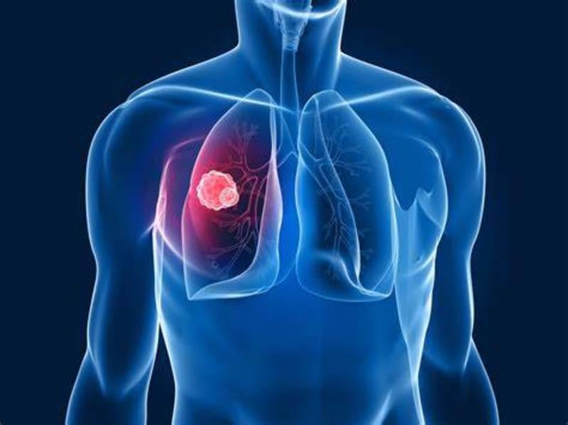 Farmaco sperimentale blocca i tumori solidi tra cui quello al polmone.